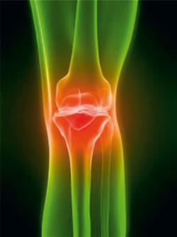 artrit.jpg