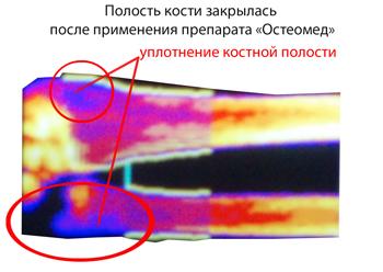 Полость кости после приема Остеомеда