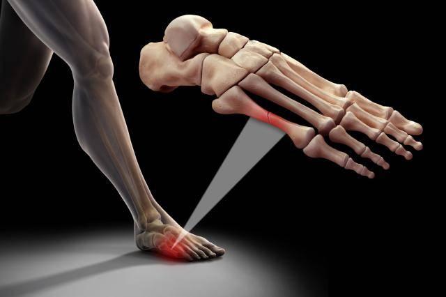 Формирование костной мозоли при переломах. Стадии заживления
