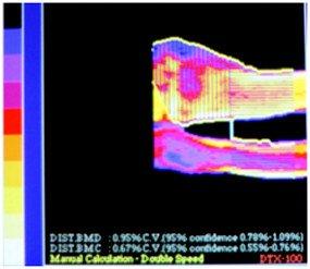 Остеопороз с полостными образованиями до лечения