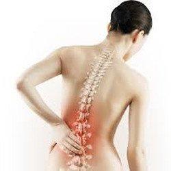 Остеопороз у женщин, группы риска, симптомы, причины