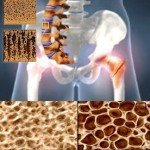 Как влияет стресс на развитие остеопороза