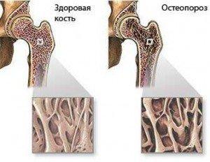 Остеопороз — что это такое.