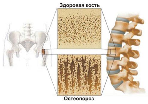 Профилактика остеопороза у мужчин, при климаксе и в пожилом возрасте