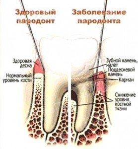Плотность костной ткани при заболевании пародонта значительно ниже, чем при здоровом пародонте.