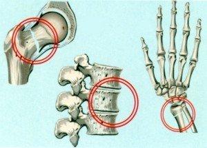 вместе против остеопороза