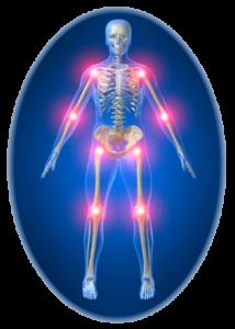 Рентгеновские снимки при артрозе