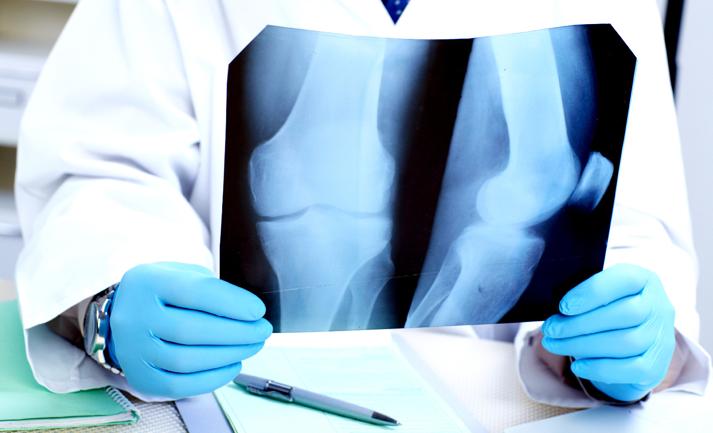 "osteoporosis term paper This paper intends to ""the term aging refers to a what are the signs or symptomsosteoporosis is the disease i choose for this paper osteoporosis is a bone."