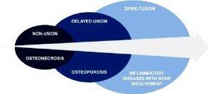 Мишени костных условий (Bone conditions targeted) и стратегия «Bone Therapeutics» (Источник: Bone Therapeutics)
