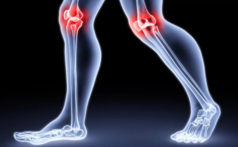 Причина хруста в коленном суставе