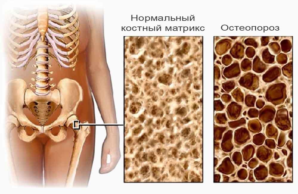 Переломы при остеопорозе, как уберечь себя от фатальных переломов