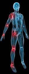Нарушение функций щитовидной железы провоцирует остеопороз