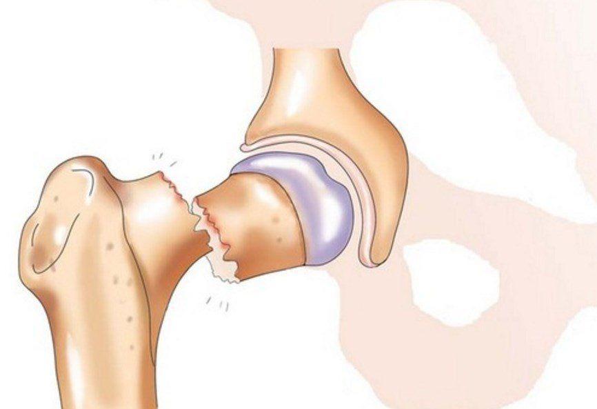 Перелом проксимального отдела бедренной кости