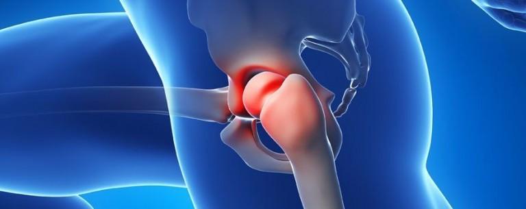 Остеопороз тазобедренного сустава – лечение