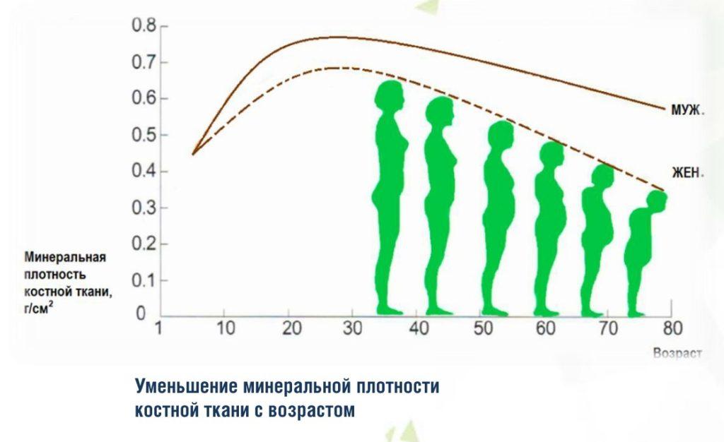 Уменьшение МПКТ с возрастом