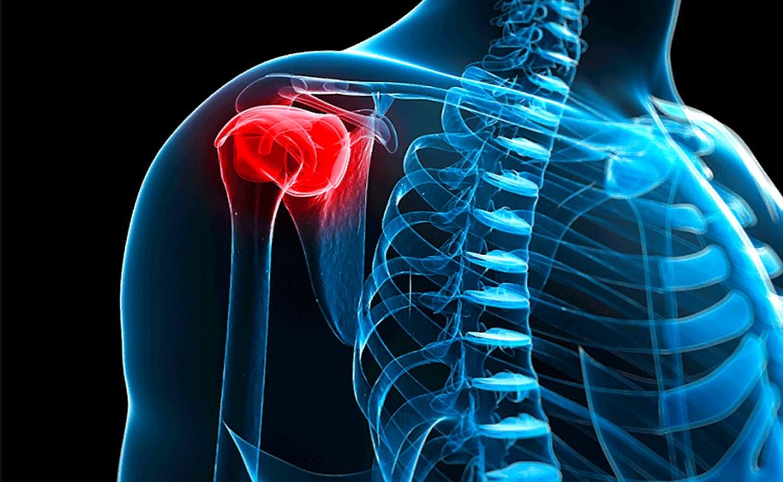 Плечелопаточный периартрит: причины симптомы лечение