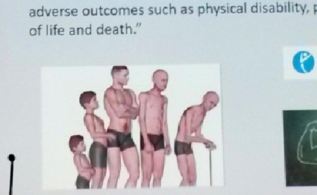 Остеопороз в гериатрической практике. Рис. 1. Динамика жизни и смерть. WCO17. Италия