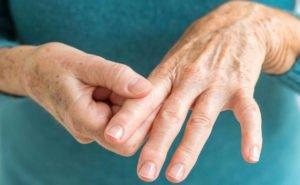 причина возникновения ревматоидного артрита