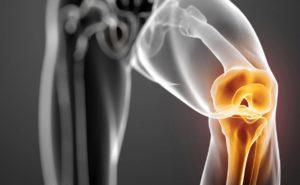 причины слабости и ломкости костей