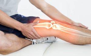 Изображение - Посттравматический артроз суставов posttravmaticheskiy-artroz-300x185