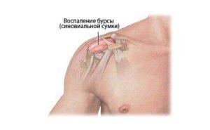 бурсит плечевого сустава