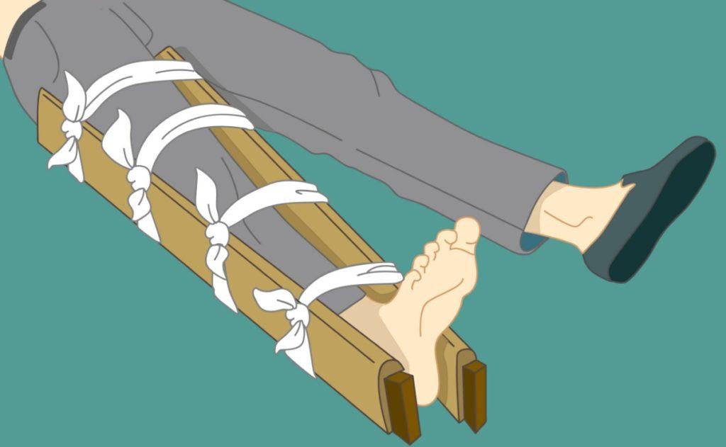 первая помощь при переломе берцовой кости