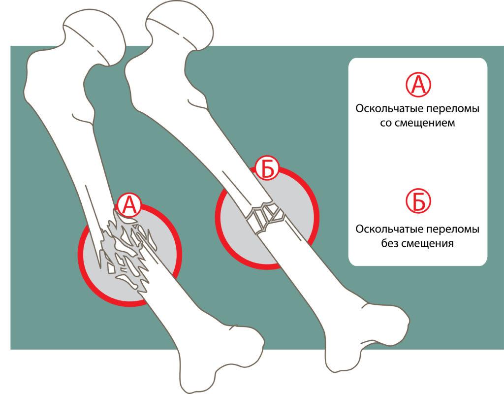 Оскольчатые переломы без смещения и со смещением