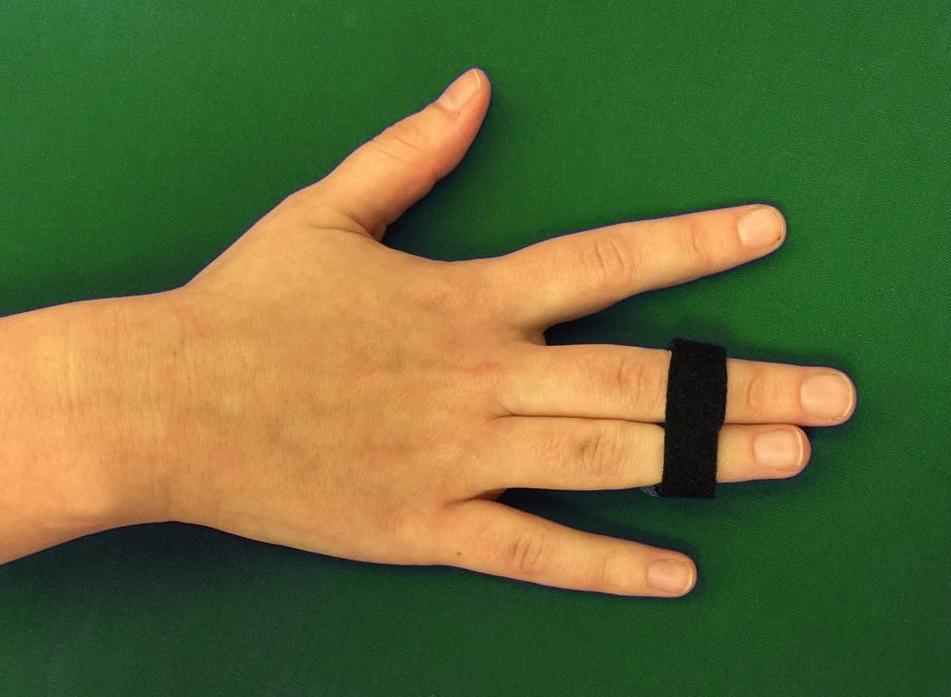перелом безымянного пальца на руке