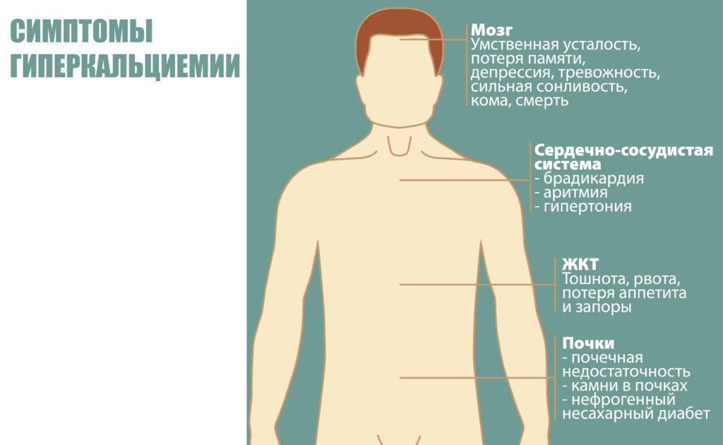 Симптомы гиперкальциемии