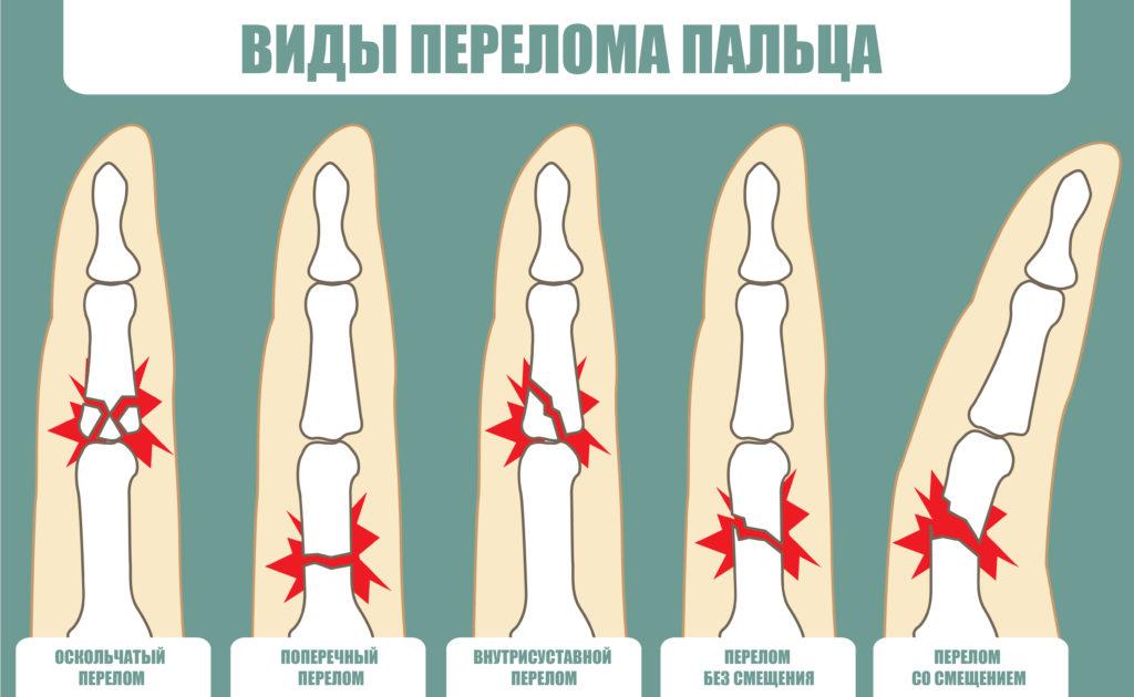 Классификация переломов пальцев