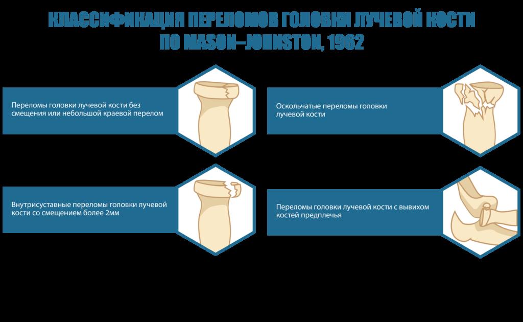 Классификации переломов лучевой кости