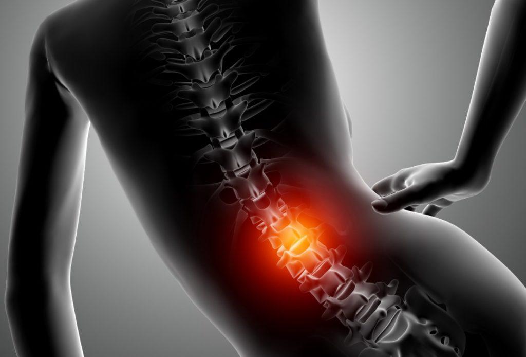 протрузия межпозвонковых дисков симптомы