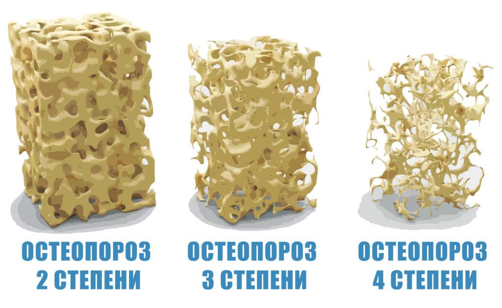 Остеопороз 1 степени – первая ступень заболевания
