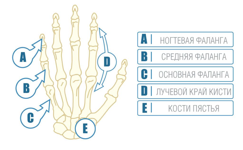 кисть руки при ревматоидном артрите