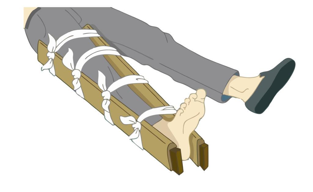 полное восстановление после перелома ноги,