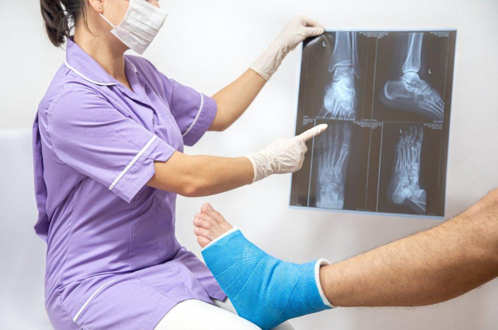реабилитация после перелома лодыжки перелом голеностопа лфк