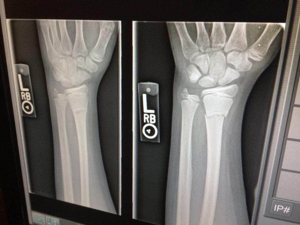 сколько времени болит рука после перелома рентген
