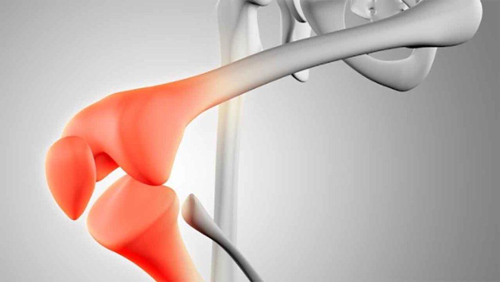 трещина коленной чашечки симптомы и лечение