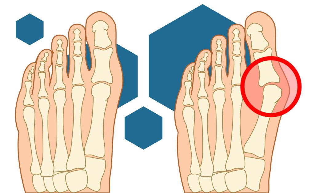 Что представляет собой шишка на большом пальце ноги