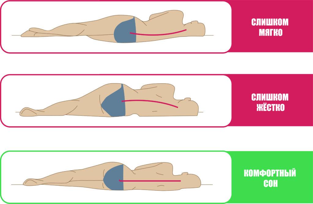 Как выбрать матрас для правильного сна при остеохондрозе шейного отдела