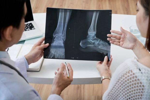 Клиническая диагностика вальгусной деформации стопы