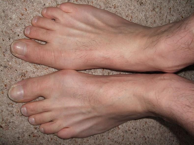 Шишка на большом пальце ноги: степени и виды деформации